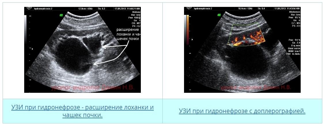 При беременности расширены лоханки почек